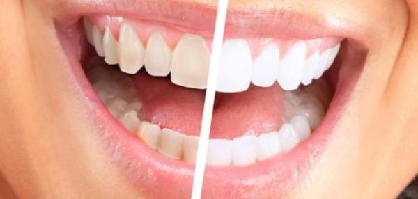 أسهل الطرق للحصول على أسنان بلا جير